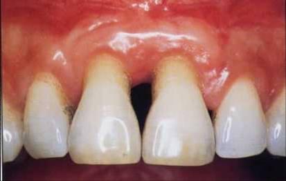 dentiste bron