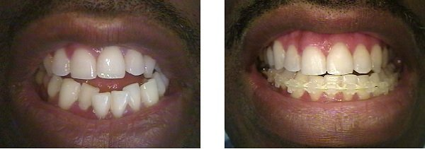 dentiste bron alignement des dents